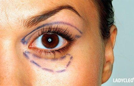 Особливості транскон`юктівальной блефаропластики очей