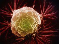 Особливості волосатоклітинному лейкозу