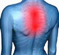 Остеохондроз в грудному відділі хребта