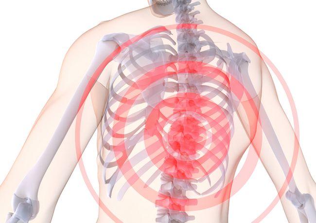 Остеохондроз грудного відділу