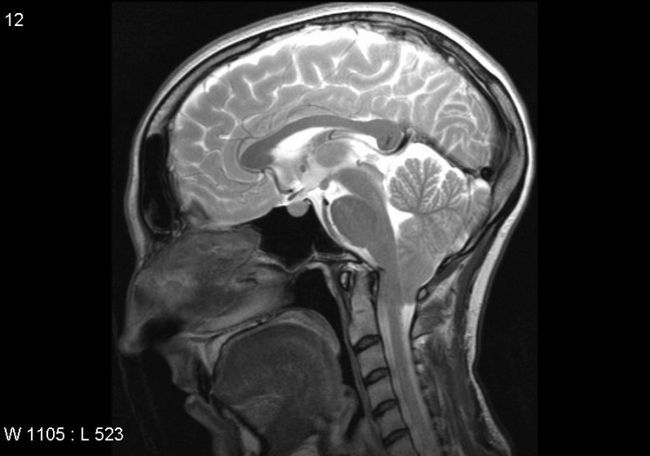 мізки
