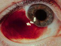 Чому відбувається розрив судин в очах