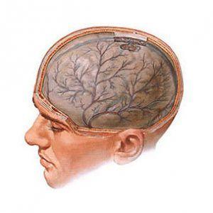 Набряк мозку: причини і форми, симптоми, лікування, ускладнення і прогноз