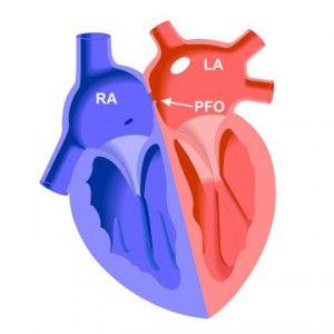 Відкрите овальне вікно (отвір) в серце: причини, закриття, прогноз
