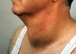 збільшення щитовидної залози