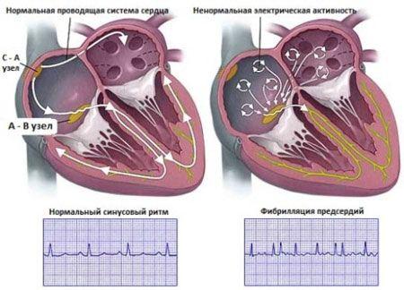 порушення роботи серця при аритмії