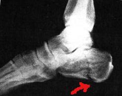 Перелом п`яткової кістки