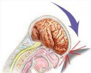 Струс головного мозку