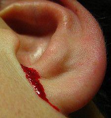 Кровотеча з вуха
