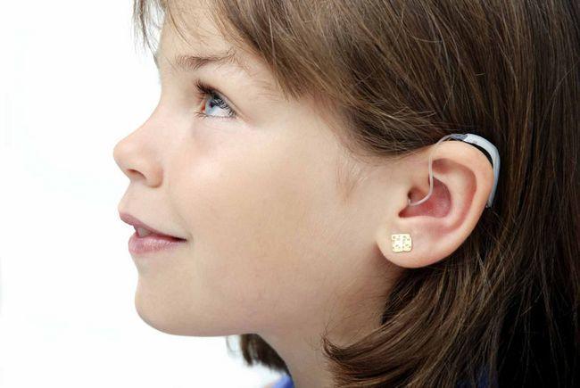 слухопротезування вух
