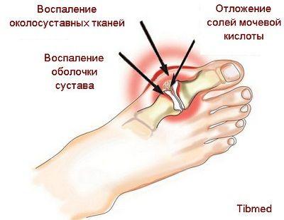 Чому утворюється подагра на ногах і що з нею робити