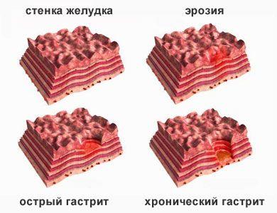 Підбір меню для дієти при гастриті шлунку