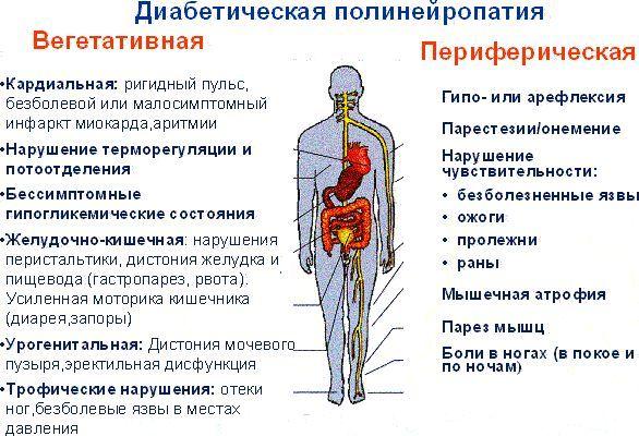 Полінейропатія: діабетична, нижніх кінцівок, алкогольна (токсична) та інші