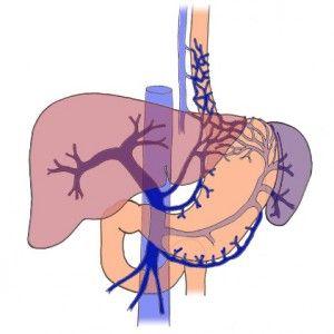 Портальна гіпертензія: фактори виникнення, ознаки, течію, усунення