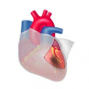 Постінфарктний синдром дресслера: причини, ознаки, терапія