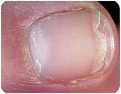 тендітні нігті