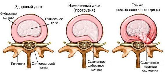 Стадії формування хребетної грижі