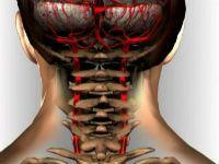 Хребетні артерії і їх патології