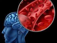 Препарати, що поліпшують кровопостачання головного мозку