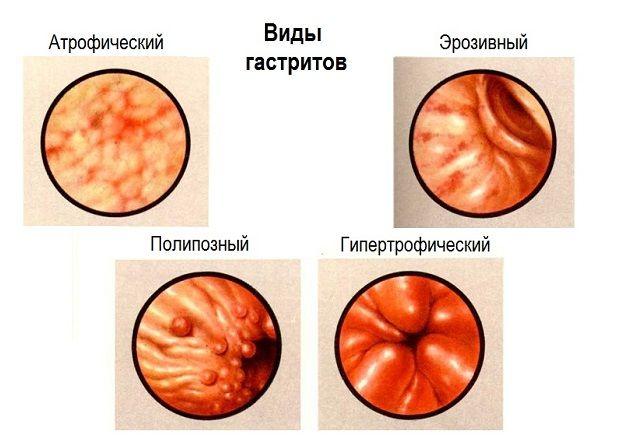 Симптоми і лікування зернистого гастриту