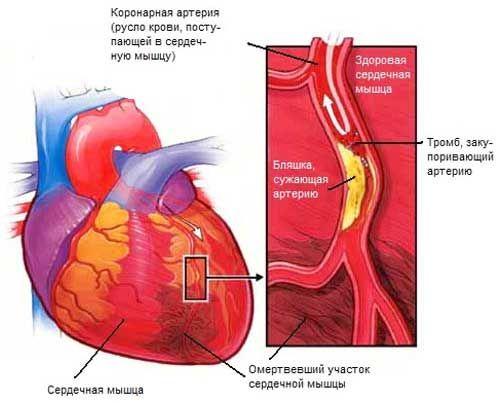 інфаркт