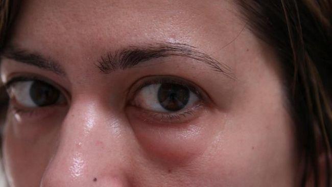 Причини і лікування опухлих очей