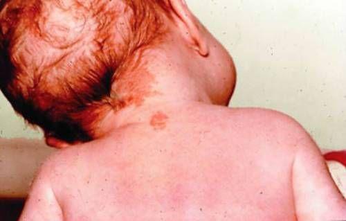 Гемангіома у дитини на шиї