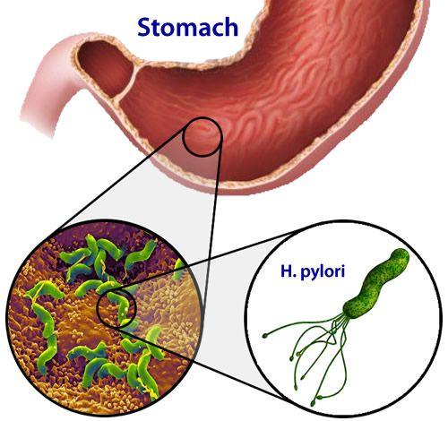 Причини і методи лікування запалення шлунка