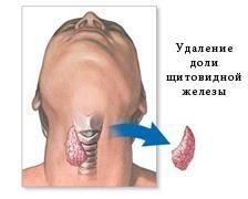 Видалення частки щитовидної залози