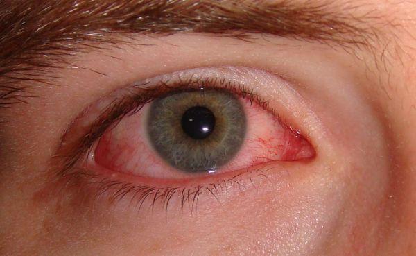 очі червоні