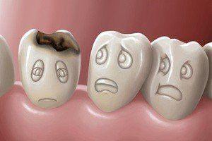 захворювання зубів