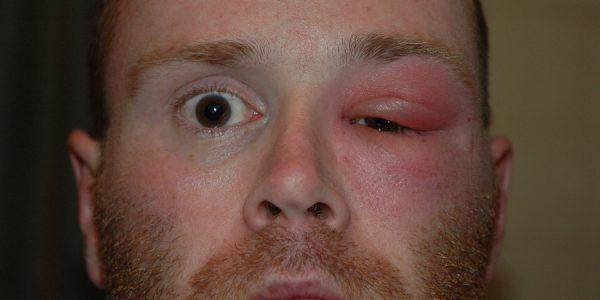 Причини появи припухлості очей і верхньої повіки