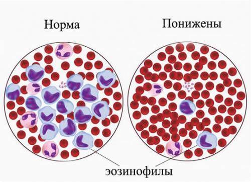 Еозинофіли в мазку крові
