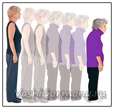 Малюнок поступового зменшення росту при остеопорозі