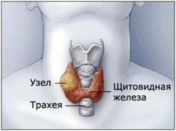 розрослася щитовидка