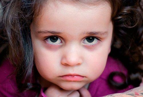 Причини синців і темних кіл під очима у дитини
