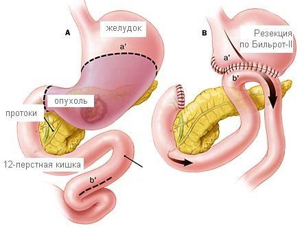 Причини видалення шлунка