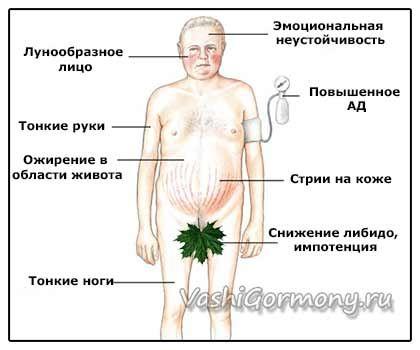 Малюнок-схема симптомів синдрому Іценко-Кушинга