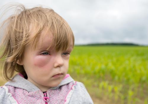 Прояви набряку Квінке у дітей