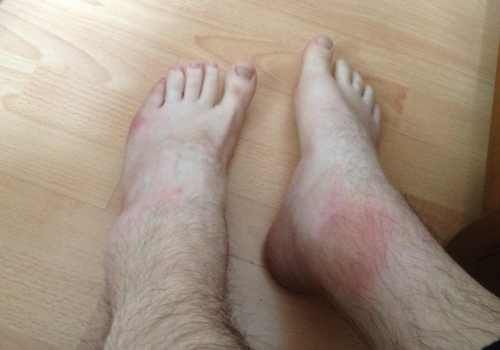 Причини виникнення набряків ніг вечорами