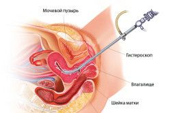 схема міомектомії