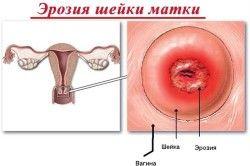 Розвиток ерозії шийки матки при виявленні ВПЛ на шийці матки
