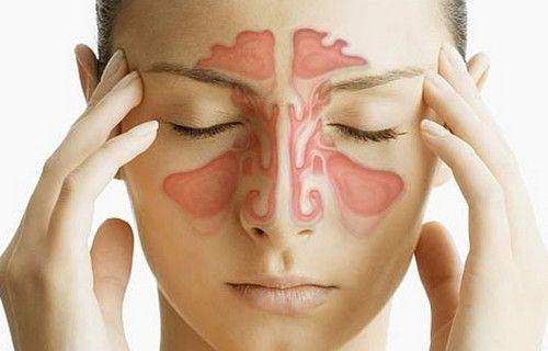 Ознаки та симптоми гаймориту