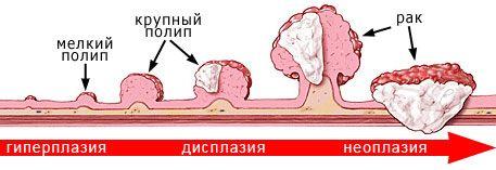Ознаки та симптоми раку кишечника