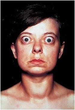 Ознаки проблем зі щитовидною залозою у жінок: гіпотиреоз і гіпертиреоз