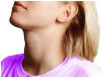 Припухлість в області шиї