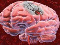 Прогноз і наслідки ішемічного інсульту