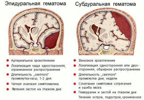 гематома мозку