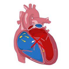 Провідність в серце, її уповільнення, порушення: причини, локалізації, чим небезпечне