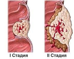 Рак щитовидної залози, скільки живуть після операції. Лікування та прогноз різних форм раку